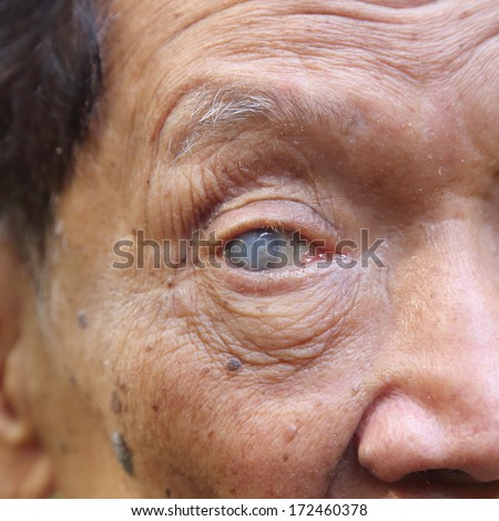 close up image of old man blind eye - stock photo