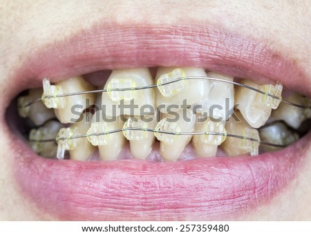 Close-up mouth of crooked teeth with braces. - stock photo