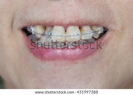 how to smile with your mouth closed with braces
