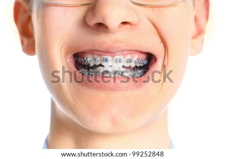 Close-up mouth of tooth with braces over white background. - stock photo