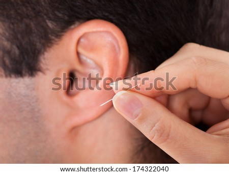 Close-up Of A Acupuncturist Holding Needle Near Ear - stock photo