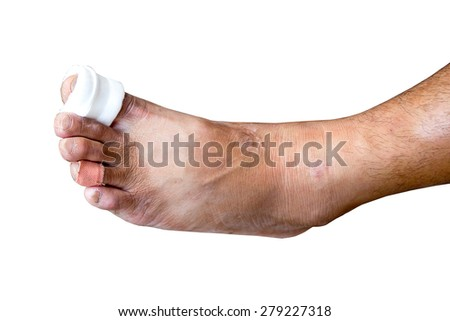 Close-up of a bandage wrapped on injured toe isolated over white - stock photo