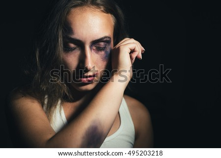 Close up of a beaten face of a Caucasian woman with worried look on her face covered with bruises. She is trying to defend herself. Low key light.