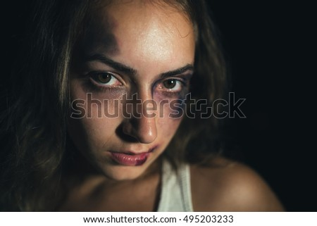 Close up of a beaten face of a Caucasian woman with worried look on her face covered with bruises. Low key light.