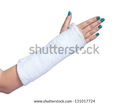 close up of a broken arm in a plaster cast on a white background - stock photo
