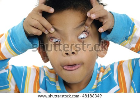 close-up of a cross-eyed young boy - stock photo