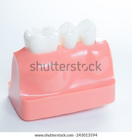 Close up of a Dental  implant model. Selective focus. - stock photo