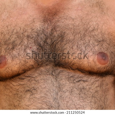 Close up of a hairy skin - stock photo