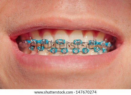Close-up of a happy teenage boyl smiling with braces - stock photo