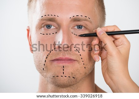 Close-up Of A Man's Face With Correction Line Drawn By Person's Hand For Plastic Surgery - stock photo