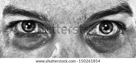 close up of a man's Sick eyes about to die. In Black and White. - stock photo