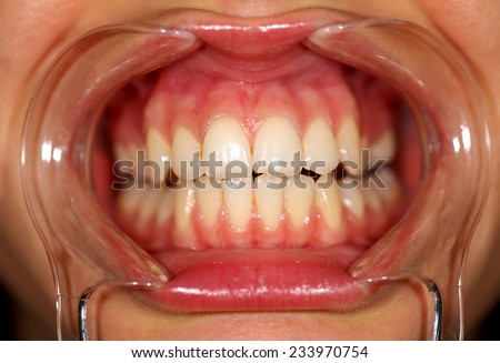 Close up of a patient's mouth at a dental clinic - stock photo