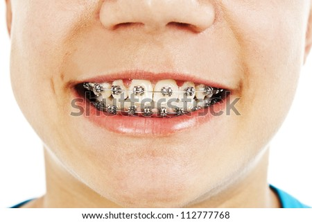 Close-up of a smiling young teenager with braces on white background. - stock photo