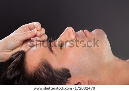 Close-up Of A Young Man Getting Acupuncture Treatment - stock photo