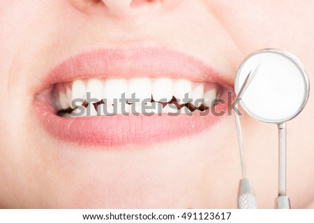 Close-up of beautiful white teeth with dentist tools like perfect smile concept