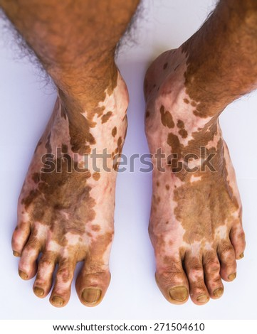 Close up of both feet were burning wound healed scarring unusual pattern. - stock photo