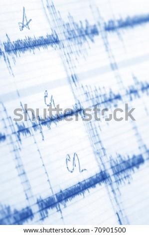 Close-up of cardiogram. Monochrome blue toned image. - stock photo