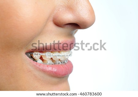 Close-up of ceramic and metallic braces on teeth. Orthodontic Treatment. Dental Care Concept