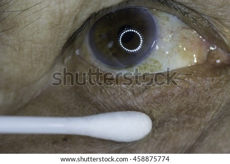 close up of conjunctival papilloma during eye examination. - stock photo