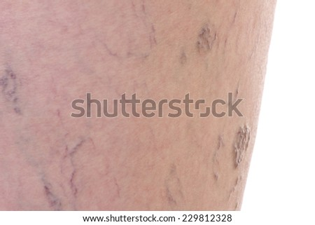 Close-up of dermis with varicose veins - stock photo