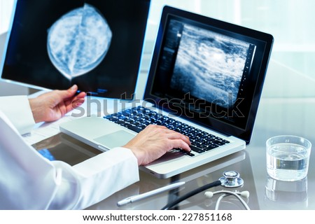 Close up of Doctor reviewing mammography results on x-ray and typing results on laptop. - stock photo