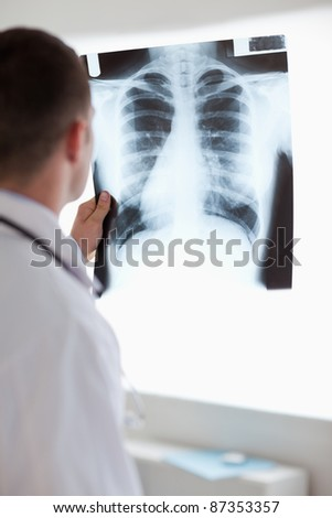 Close up of doctor using light to check x-ray photograph