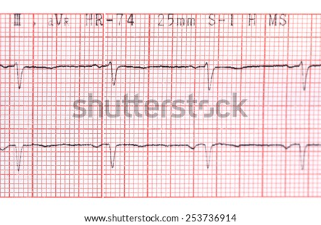 Close up of electrocardiograph in paper