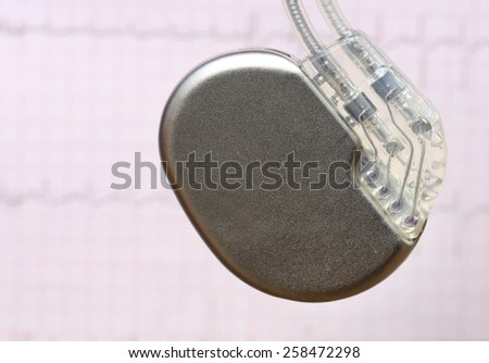 Close up of Electrocardiograph with pacemaker - stock photo
