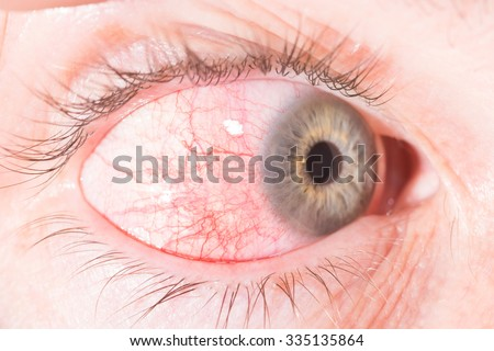 close up of episcleritis during eye examination. - stock photo