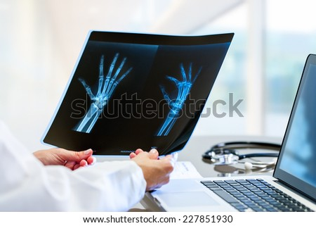 Close up of Female doctor at desk with laptop holding and reviewing trauma x-ray. - stock photo