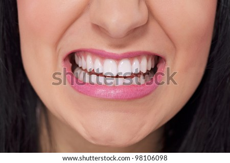Close up of female perfectly white healthy teeth in angry grin - stock photo