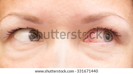 close up of healthy and irritated red eyes