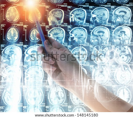 Close up of human hand holding pen examining x-ray results - stock photo