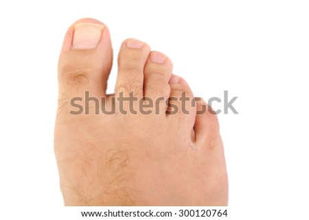 Close up of male foot and toes - stock photo