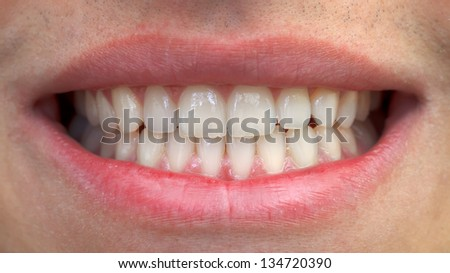 Close-up of man mouth with white teeth - stock photo