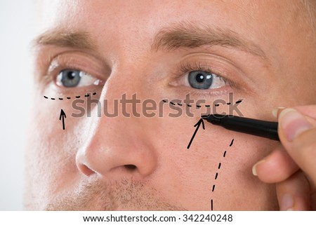 Close-up Of Person's Hand Drawing Correction Line With Pen Near Man's Eyes - stock photo