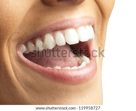Close Up Of Smiling Teeth Isolated On White Background
