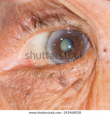 Close up of the  cataract during eye examination. - stock photo