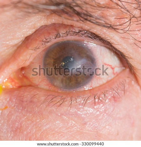 close up of the interstitial keratitis during eye examination. - stock photo