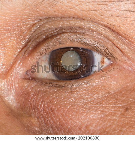 Close up of the mature cataract during eye examination. - stock photo