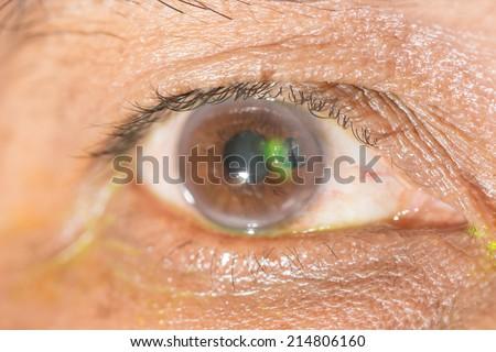 Cornea Stock Photos, Images, & Pictures | Shutterstock