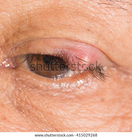 close up of the ruptured stye during eye examination. - stock photo