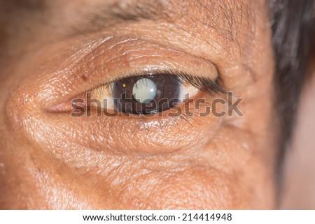 close up of the senile cataract during eye examination. - stock photo