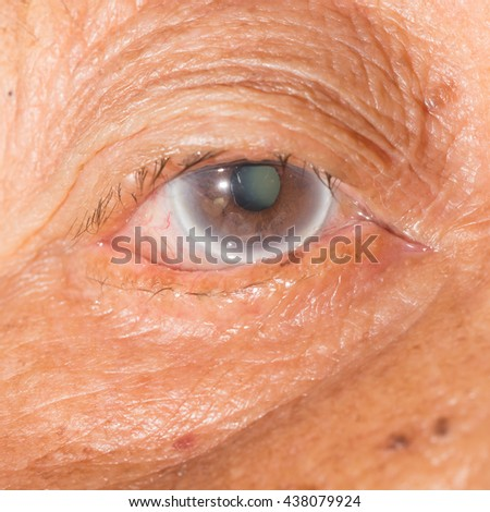 close up of the senile cataract during eye examination, senile cataract, mature cataract, neuclear sclerosis cataract. - stock photo