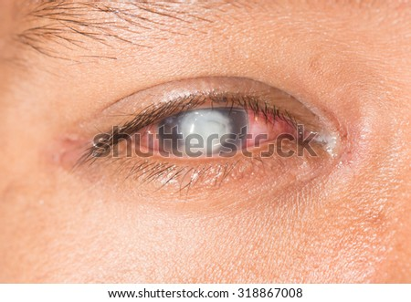 close up of the severe fungal corneal ulcer during eye examination. - stock photo