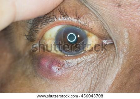 Close up of the stye during eye examination. - stock photo