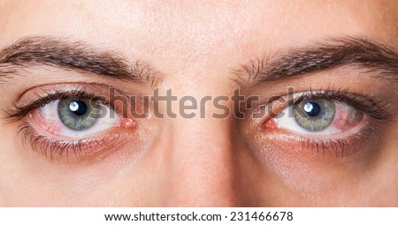 Close Up of two irritated red blood eyes. - stock photo