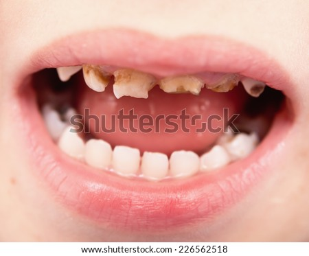 close up of unhealthy baby teeth
