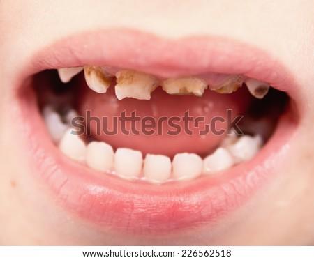 close up of unhealthy baby teeth - stock photo