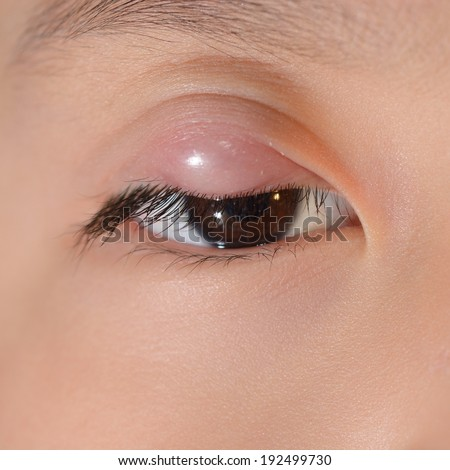 Close up of upper eyelid abscess during eye examination. - stock photo